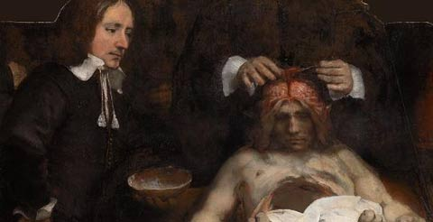 Anatomische les van Dr. Jan Deijman (fragmento) - 1656 - Rembrandt
